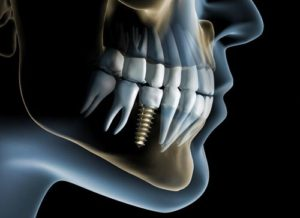 Implant dentar MG Dental