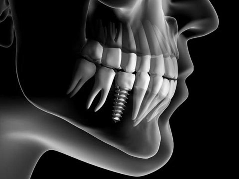 Implant dentar MG Dental
