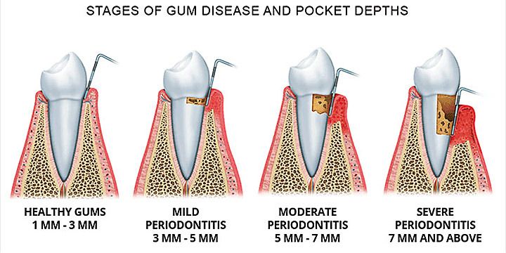 Gingivita si parodontita