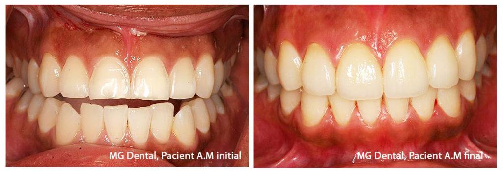 Tratament fatete dentare