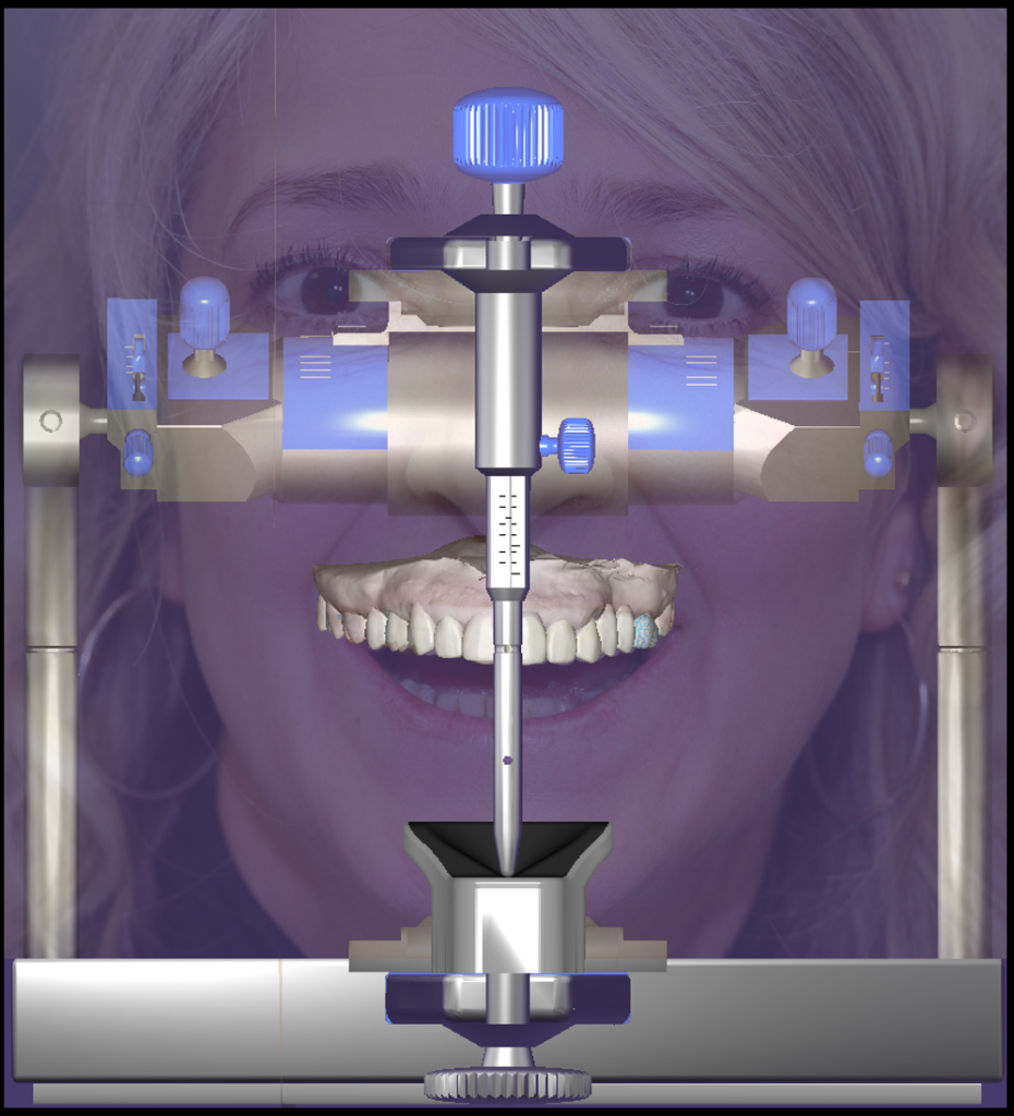 Computer Aided Smile Design (CASD)