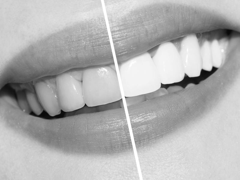 Albire dentara MG Dental