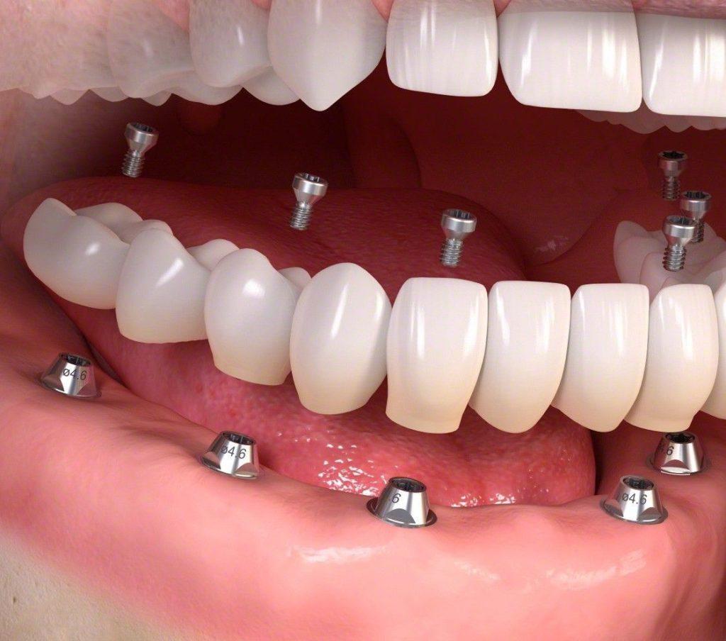 Proteza pe implanturi